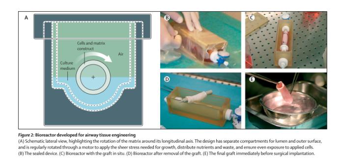 bioreactor