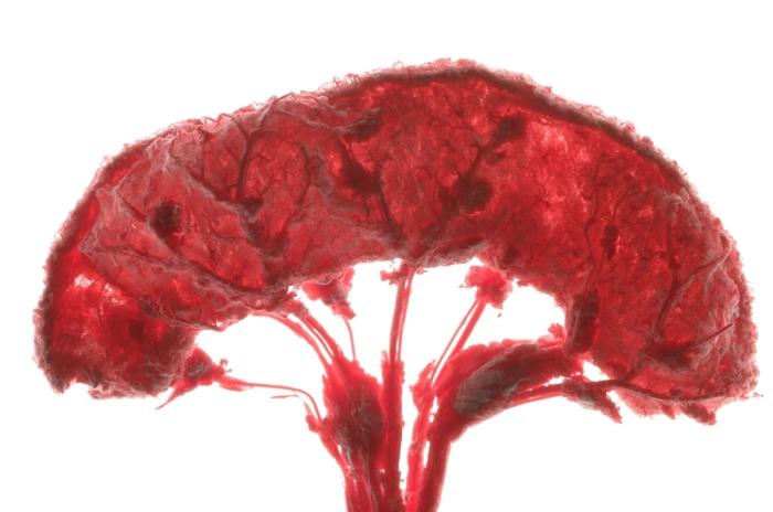 1483959320170_vaskular-testsystem