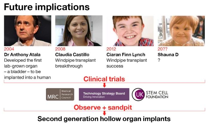 Martin Birchall's shaky road to mass tracheatransplanting
