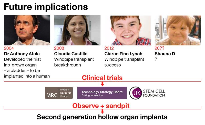 dt-organregeneration-7
